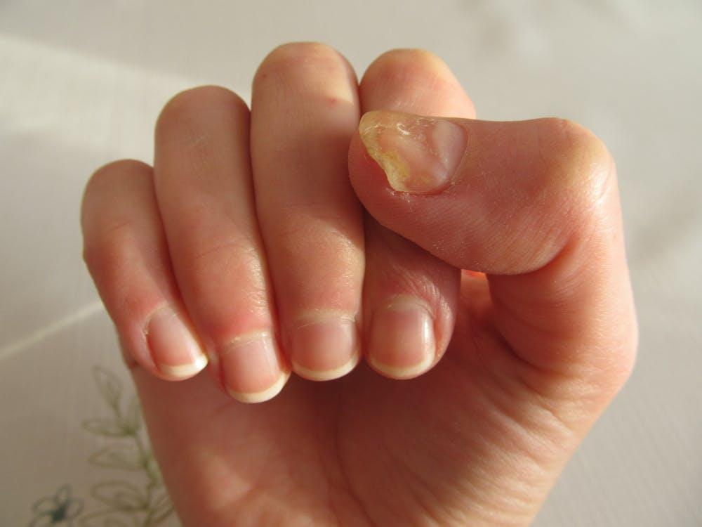 Nail fungs